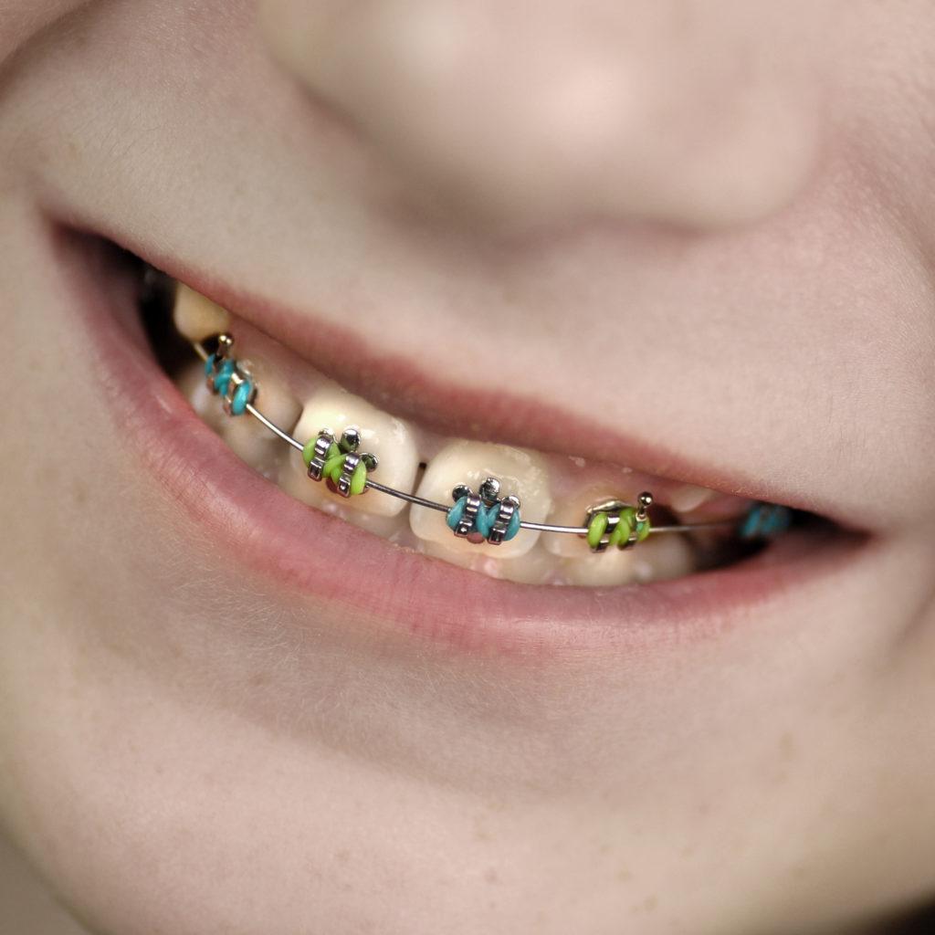 Kinder Schallzahnbürste Zahnspange