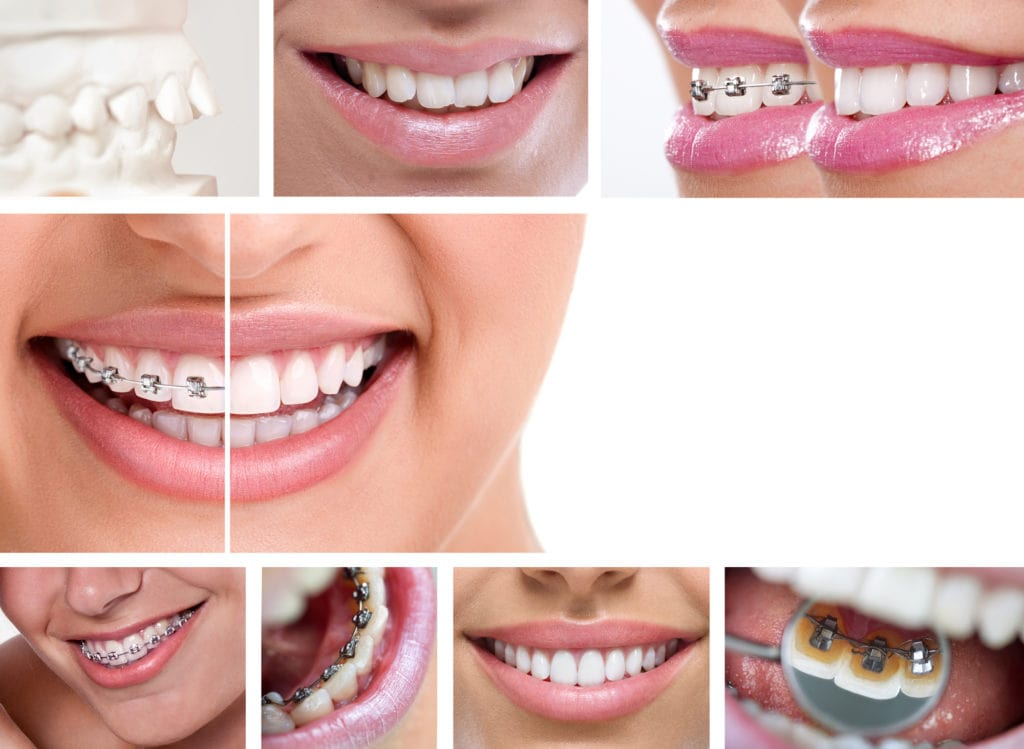 Schallzahnbürste für Zahnspangenträger
