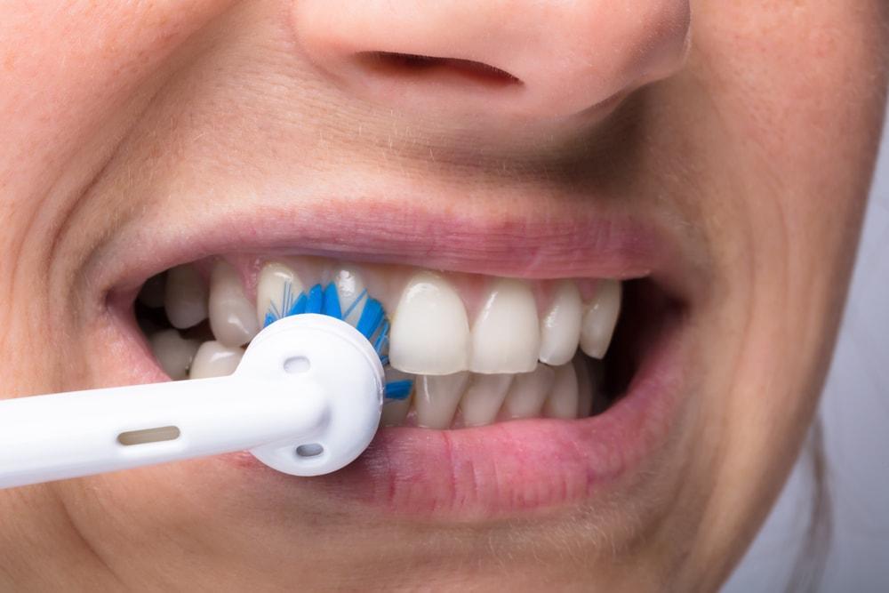 Elektrische Zahnbürste Putztechnik